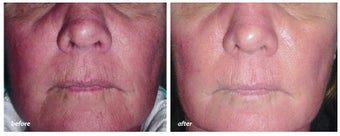 VBeam for rosacea