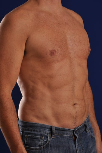 Vaser Hi Def Liposuction of the abdomen, chest, back, and flanks with fat injections to the pectoralis region after 248829
