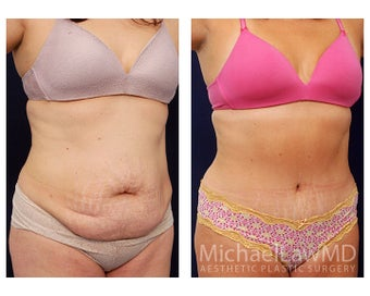 Tummy Tuck with Liposuction after 391594