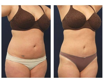Liposuction after 391878