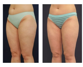 Liposuction after 392328