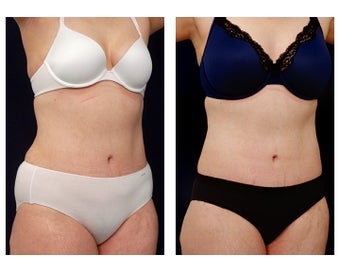 Liposuction after 397018