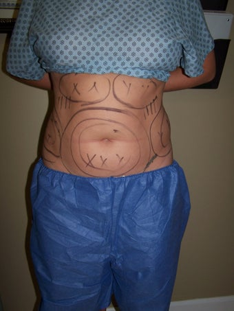 Vaser liposuction before 313441