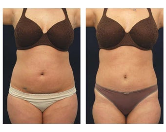 Liposuction before 391878