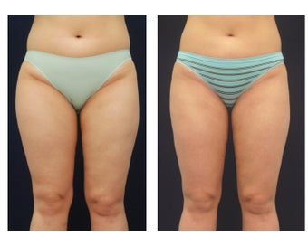 Liposuction before 392328
