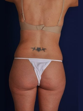 Vaser Hi-Def Liposuction of the back, flanks, medial and lateral thighs before 422717