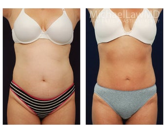 Liposuction before 495015
