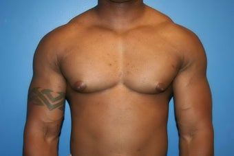 VASER Liposuction for gynecomastia before 507985