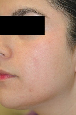 Facial Spider Vein Removal  after 106532