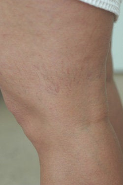 Leg vein removal  before 106536