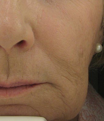 Radiesse for Nasolabial Folds and Marionette Lines after 53011