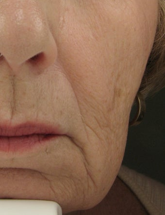 Radiesse for Nasolabial Folds and Marionette Lines before 53011