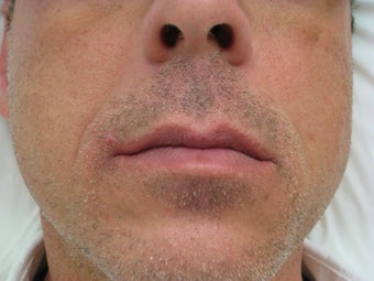 Radiesse for Nasolabial folds before 76438