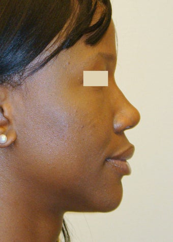 African-American Rhinoplasty after 104227