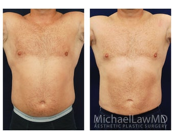 Liposuction before 495044
