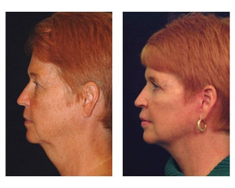 Lower Face & Neck Lift 349225