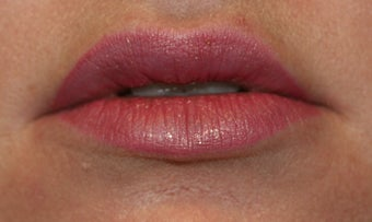 Restylane and botox used to augment the lips after 240184