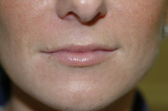 Lip augmentation before 340189