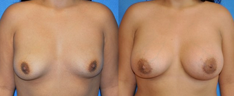 Flash Recovery Breast Augmentation TM before 253901
