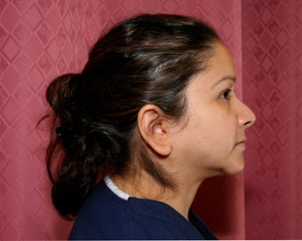 liposuction of neck & jaw line for women in Los Angeles 583586