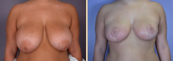 Breast Reduction & Lift before 270049
