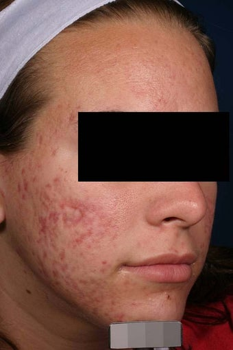 Acne laser treatment with PDT after 136707