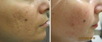 Fractional Resurfacing Acne Scars before 315014