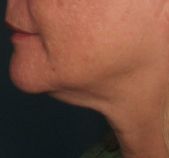 Ulthera Laser Skin Tightening before 346279