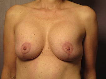 Breast Revision before 307215