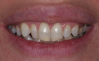 Veneer therapy before 105672