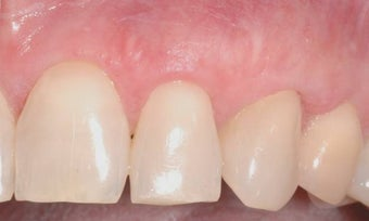 Gum Graft after 515414