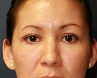 Upper and Lower Eyelid Blepharoplasty after 326448