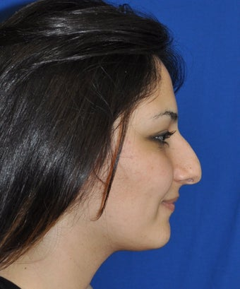 Rhinoplasty before 374395
