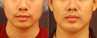 Chin Implant before 534601