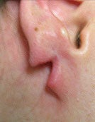 Split Earlobe before 196060
