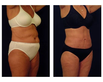 Liposuction after 397056