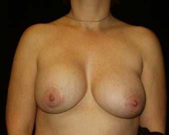 Breast implant removal before 275254