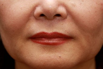 Fill the nasolabial folds and marionette lines after 508924
