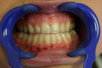 porcelain veneers 359222
