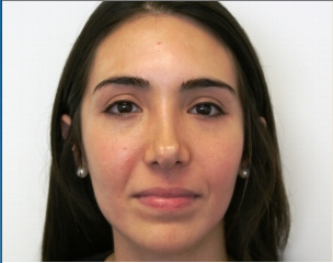 Facial Rejuvenation with Soft tissue fillers before 414179