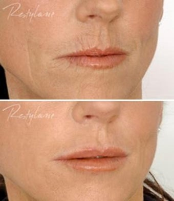 Restylane Lip Definition Before After before 6283