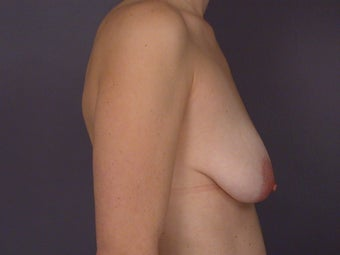 Breast Lift / Breast Augmentation  before 291040