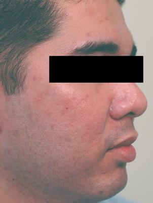 Laser Acne Treatment after 82953