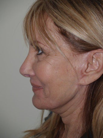 Revision Rhinoplasty after 303872