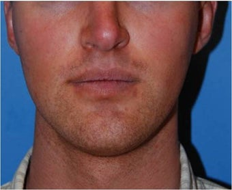 Jaw Implants for Jaw Augmentation before 130941
