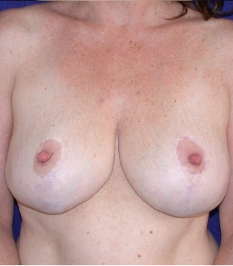 Breast Reduction after 213158