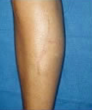 Scar revision of leg after 316562