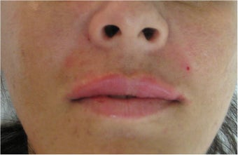 Juvederm for upper lip and nasolabial folds after 77460