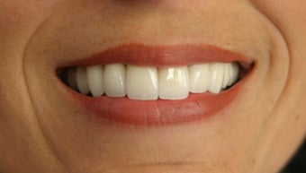 porcelain veneers after 359222