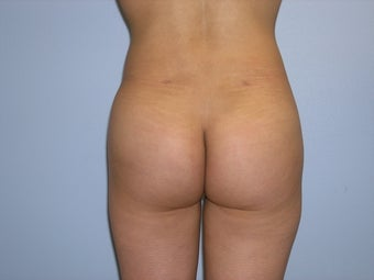Brazilian buttock augmentation after 163643